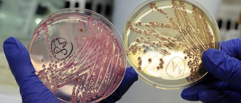 An employee holds petri dishes with bacterial strains of EHEC bacteria in the microbiological laboratory of the 'Universitaetsklinikum Hamburg-Eppendorf ' in Hamburg