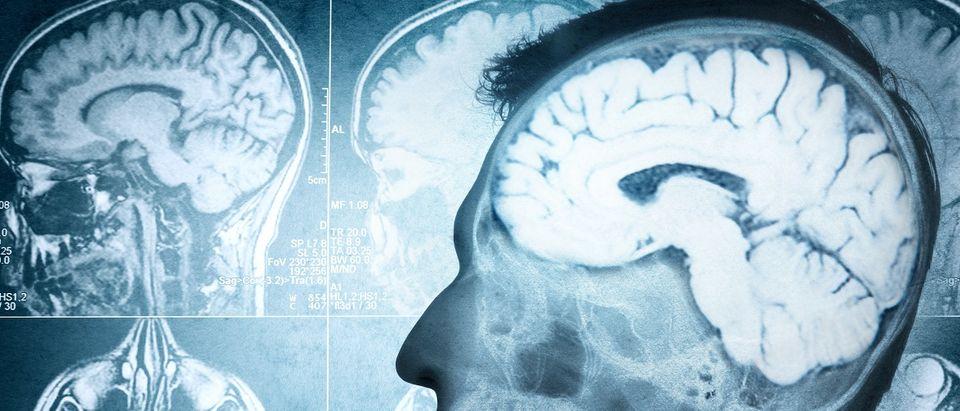 Brain Scan (Shutterstock)