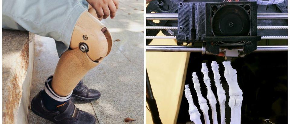 Prosthetic.3Dprinter