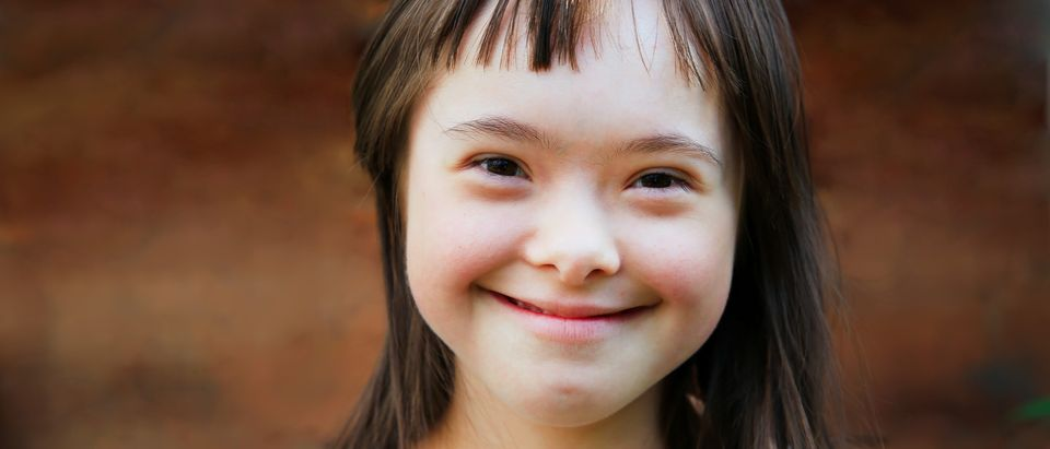 Cute smiling down syndrome girl on the brown background (Shutterstock/Denis Kuvaev)
