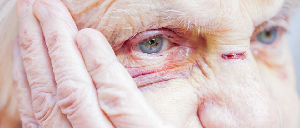 Pictured is an elderly woman. (Shutterstock/Ocskay Mark)