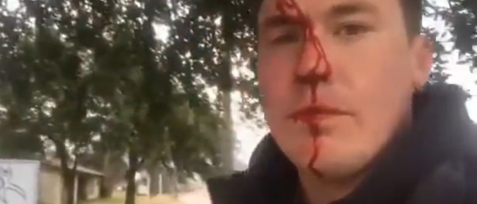 Pro-life activist assaulted