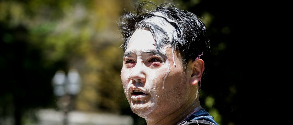 Andy Ngo, a Portland-based journalist, is seen covered in pepper spray and silly string after unidentified Rose City Antifa members attacked him on June 29, 2019 in Portland, Oregon. (Moriah Ratner/Getty Images)