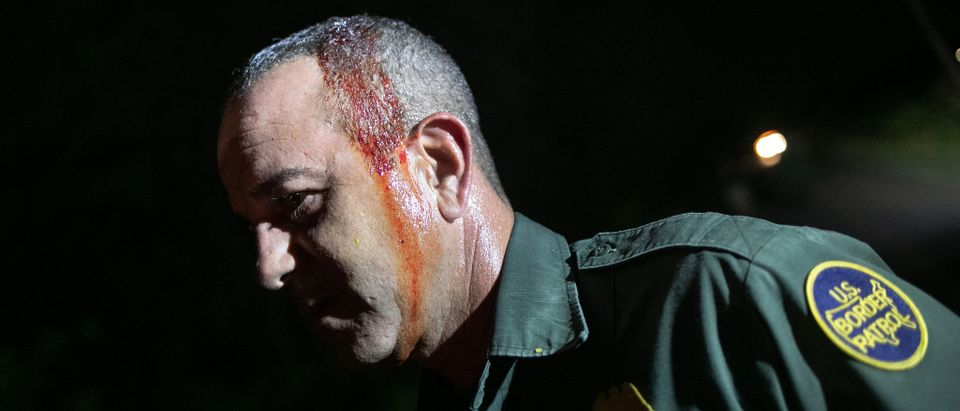 MISSION, TEXAS - SEPTEMBER 10: U.S. Border Patrol agent Carlos Ruiz bleeds from a light head wound after chasing undocumented immigrants through the woods on September 10, 2019 in Mission, Texas. Ruiz said he was hit by a branch while he was pursuing a group that had crossed the Rio Grande from Mexico into Texas earlier in the day. (Photo by John Moore/Getty Images)