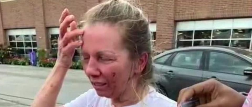 Woman Attacked In Kentucky Grocery Store Parking Lot