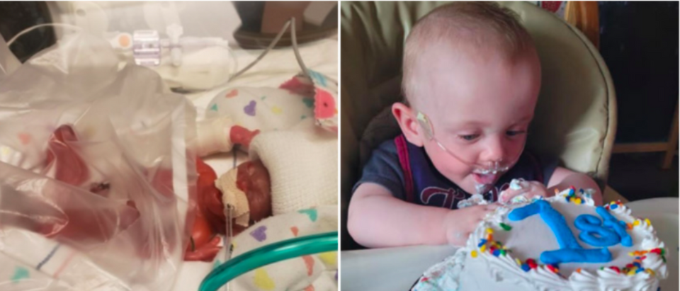 Worlds Most Premature Baby Celebrates First Birthday